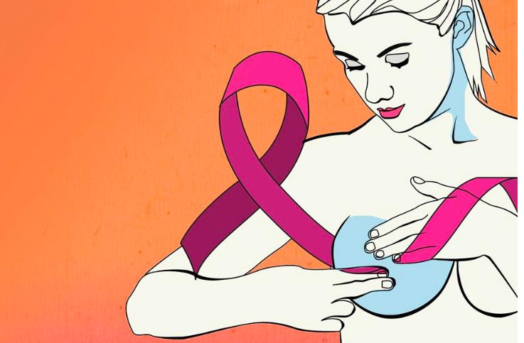 Fallecen 12 mujeres al día por cáncer de mama en México: UNAM/ Gaceta UNAM
